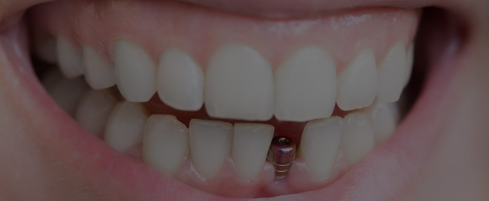 Dental Implants, UT