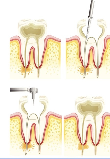 Root Canal - Endodontic therapy