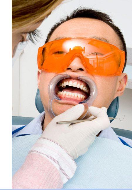 Deep Teeth Cleaning Procedure