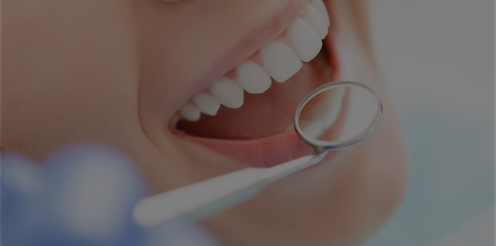 A Simple Dental Sealant Procedure Can Save Salt Lake City, UT, Residents' Teeth